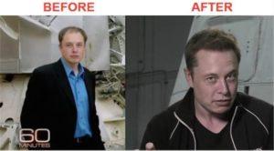 toronto hair transplant