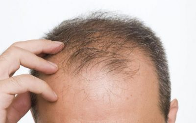 Hair Loss and Nutrition