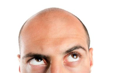 10 Signs You're Ready for a Hair Transplant