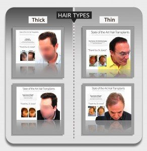 hair-types-fue-vs-strip-infographic