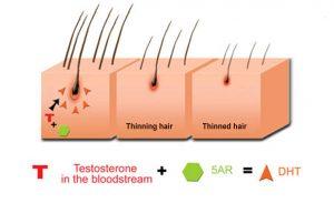 DHT-Hair-Transplants-Toronto-300x183