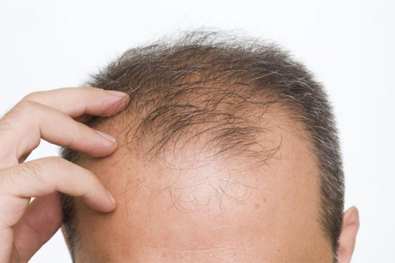 1,500-Graft Cases – 1,500-Unit Hair Transplants