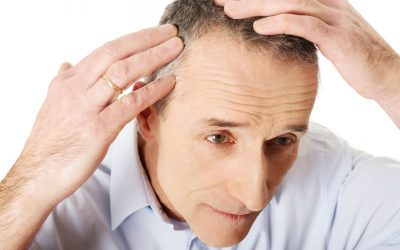 Cause Of Balding & How To Spot Hair Loss Scams