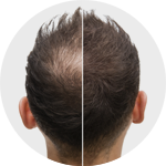 Our-Results-Toronto-Hair-Transplant-Centre