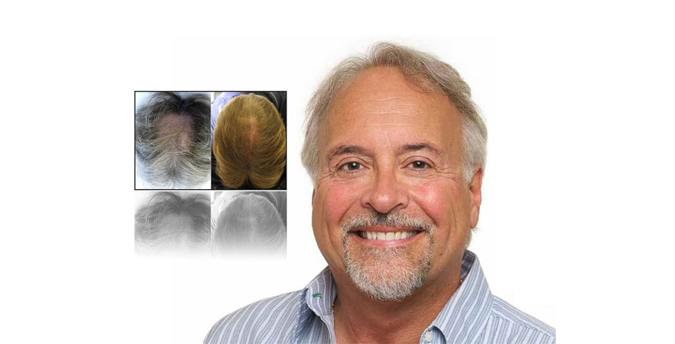 Toronto-Hair-Transplant-Centre-Slider