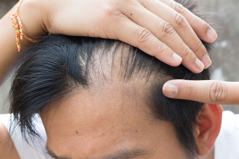 Why Me? Androgenetic Alopecia