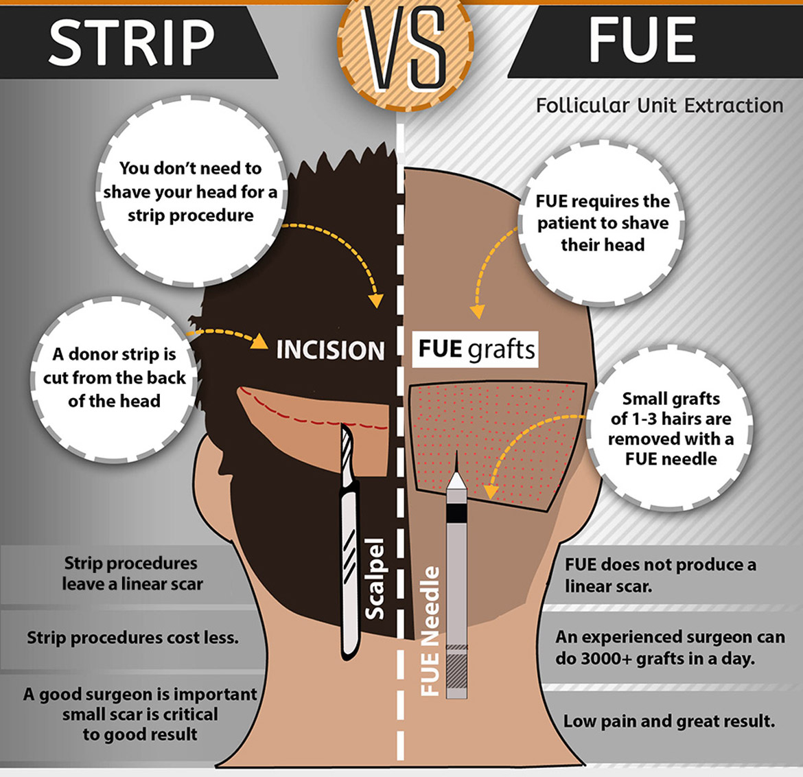 2014-8-21-960square-strip-fue-tall-fue-vs-strip-infographic