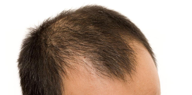 genetics-and-hair-loss-img