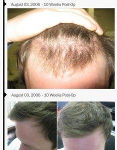 technique-of-hair-transplants-img1