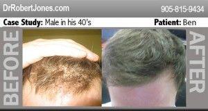 technique-of-hair-transplants