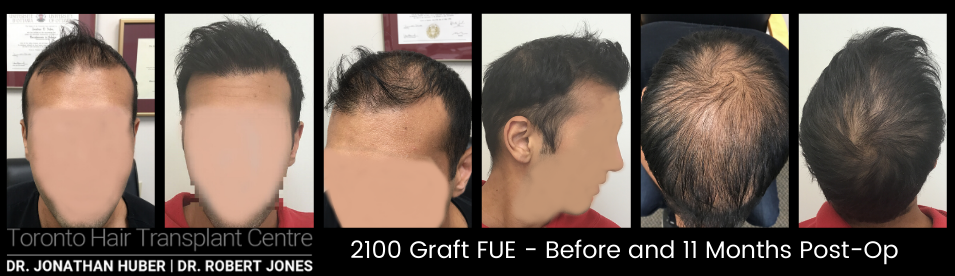 Toronto Hair Transplant Centre - Male 2100 Graft FUE and PRP