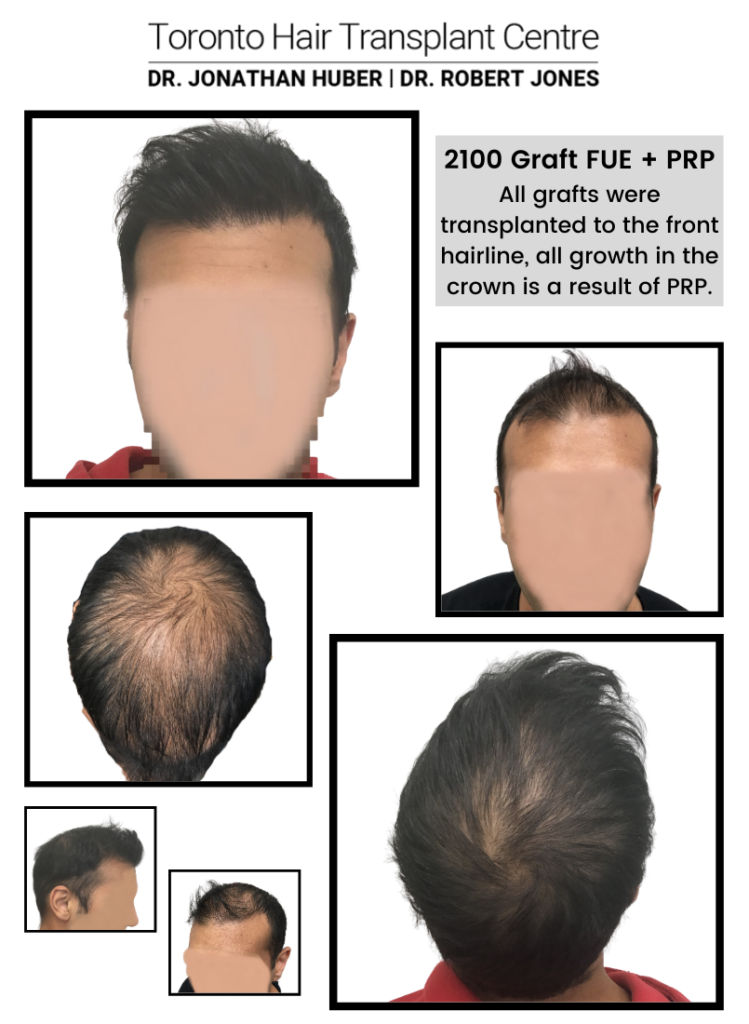 PRP and FUE - 2100 grafts