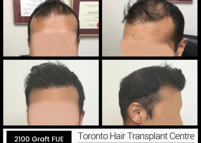 Before And After – 2100 Grafts FUE + PRP