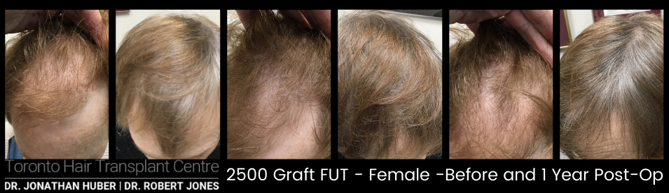 Before And After Hair Restoration, 65 year old Female, 2500 grafts FUT