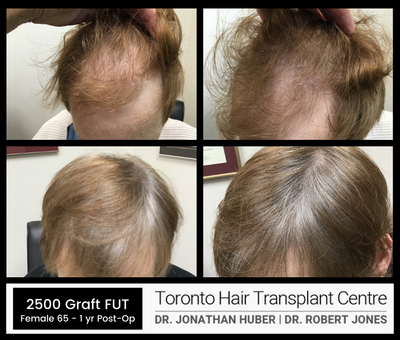 Toronto Hair Transplant Centre - FUT - Before and After - Female - 2500 Grafts