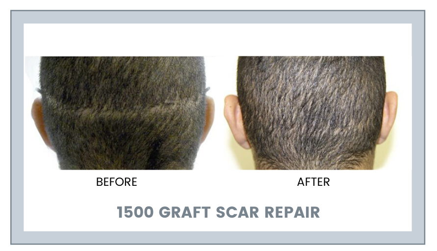 What are the Options for Scar reduction?