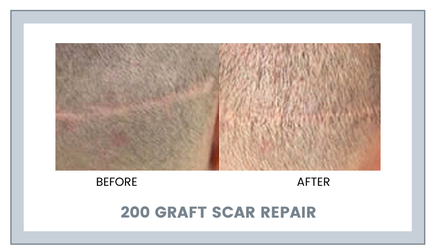 200 GRAFT SCAR REPAIR