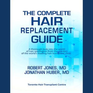 The Complete Hair Replacement Guide