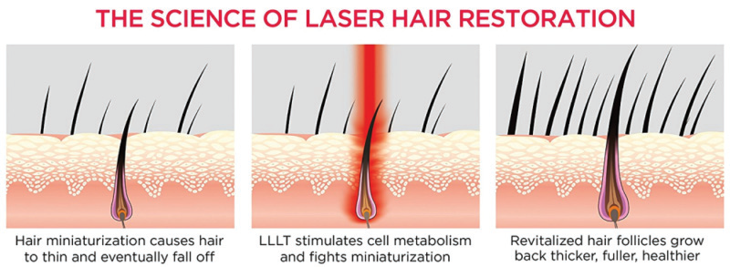 BIOLIGHT - The Science of Laser Light Hair Restoration