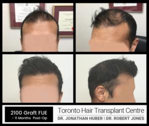Toronto Hair Transplant Centre - 2100 Graft FUE Case Study