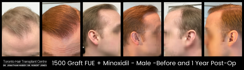 1500 Graft FUE + Minoxidil - Before and After