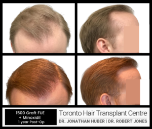 1500 GRAFT FUE BEFORE AND AFTER