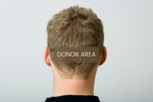 Hair Loss in 20's and 30's - Donor Area
