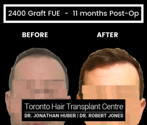 47 yr Male Before and After 2400 Graft FUE