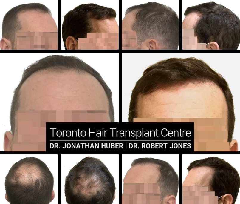 FUE Before and After - 47 yr old Male - 2400 grafts
