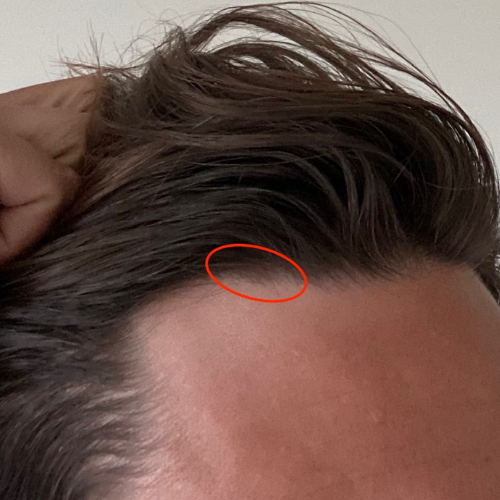 No-Shave FUE - 50 Grafts - 3 years Post-Op
